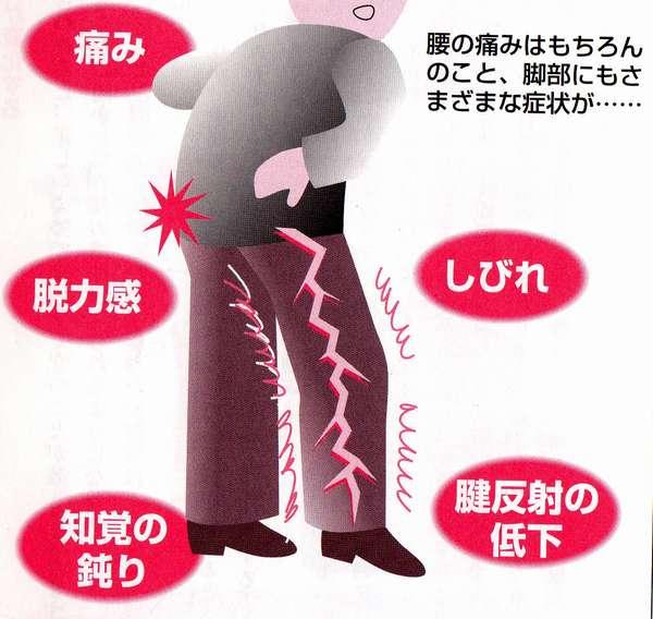 坐骨神経痛 Ι 整体・接骨は口コミNO.1:坐骨神経痛でお悩みの ...