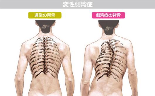 脊柱側湾症 に対する画像結果