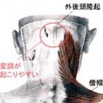 筋膜のタルミ