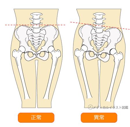 脊椎・骨盤のゆがみ12