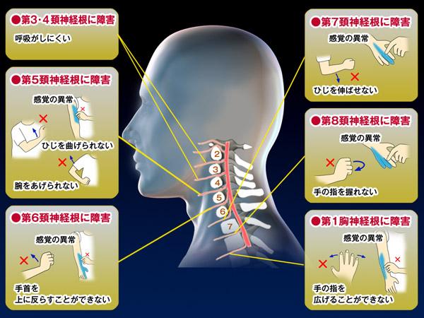 頸椎と神経