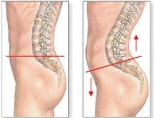 股関節痛16