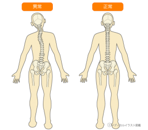 脊椎・骨盤のゆがみ11
