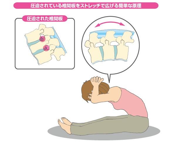 腰痛、頸椎ヘルニア8