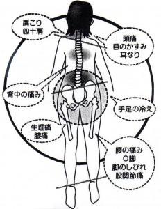 背骨のゆがみ11